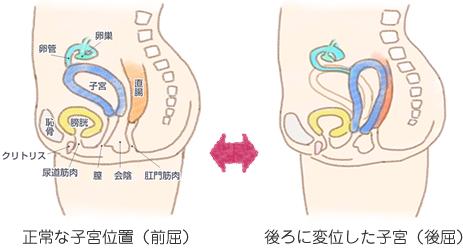 子宮の後屈