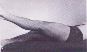 膝蓋骨骨折の検査