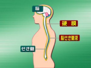 頭鳴りの原因の硬膜